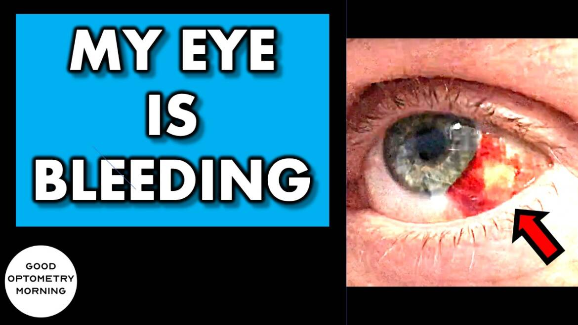 How to treat a broken blood vessel on you eye